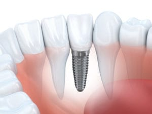 Dental Implants West Loop Chicago, IL