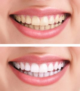 Teeth Whitening West Loop Chicago, IL